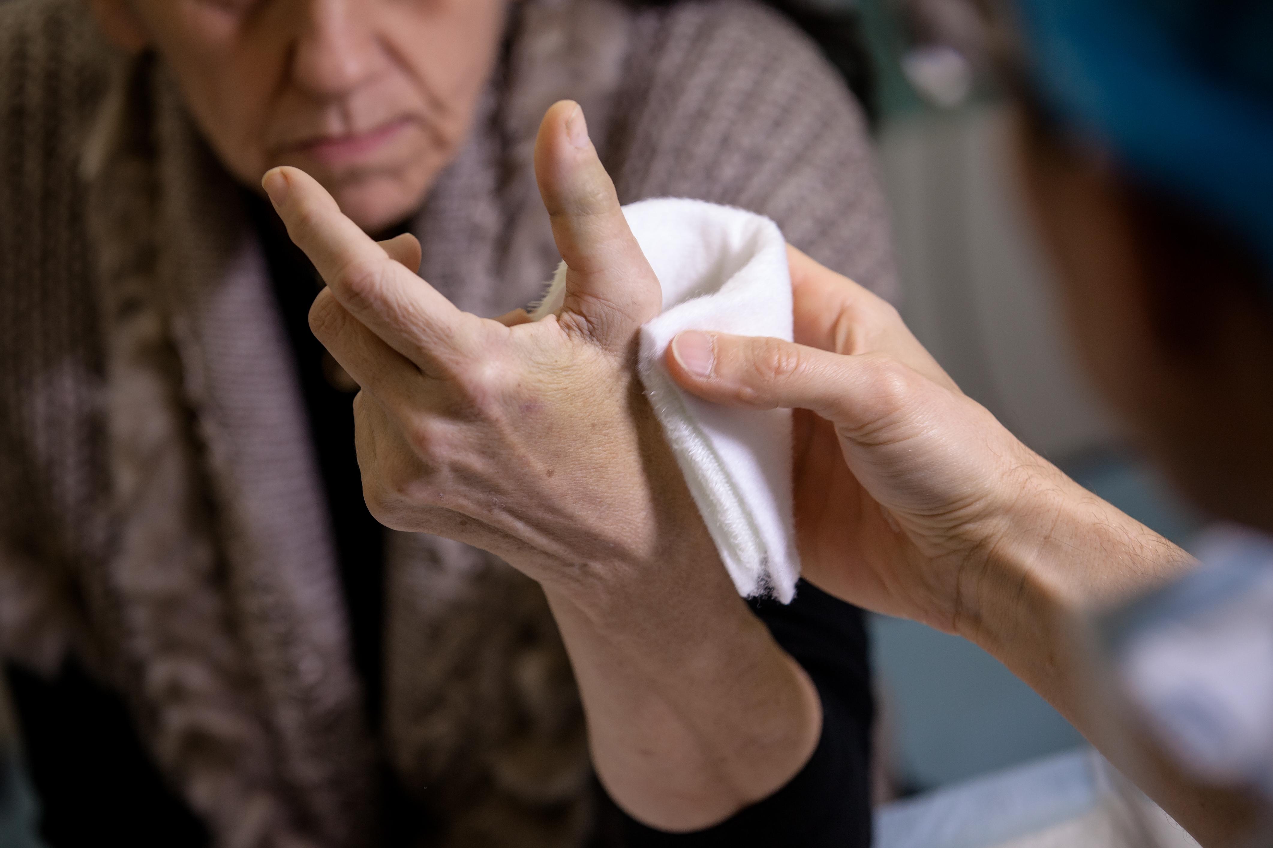 Service des urgences de la main Hôpital Privé Dijon Bourgogne